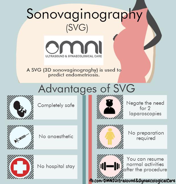 SVG Infographic